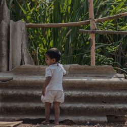 COVID-19 and the Burden of Child Undernutrition